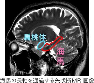 海馬の長軸を通過する矢状断MRI画像