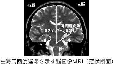 左海馬回旋遅滞を示す脳画像MRI(冠状断面)