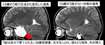 「脳は自分で育てられる」p25・図6より抜粋