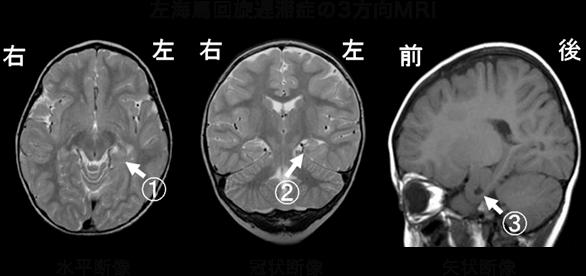 左海馬回旋遅滞症の3方向MRI