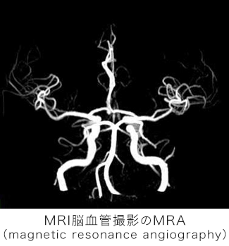 MRI脳血管撮影のMRA(magnetic resonance angiography)