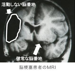 脳梗塞患者のMRI