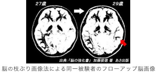 脳の枝ぶり画像法による同一被験者のフローアップ脳画像