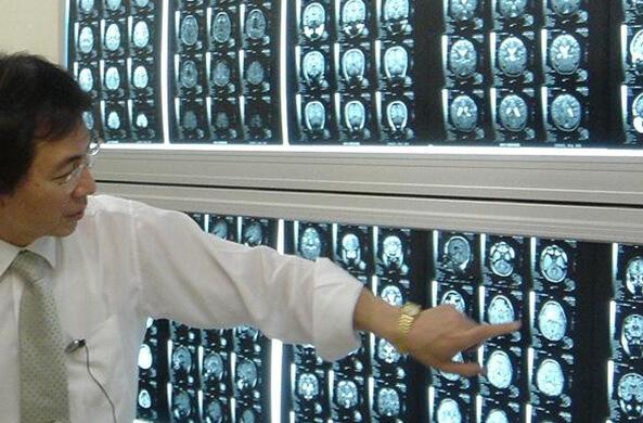 加藤式MRI脳画像診断