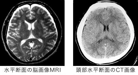 左・水平断面の脳画像MRI、右・頭部水平断面のCT画像