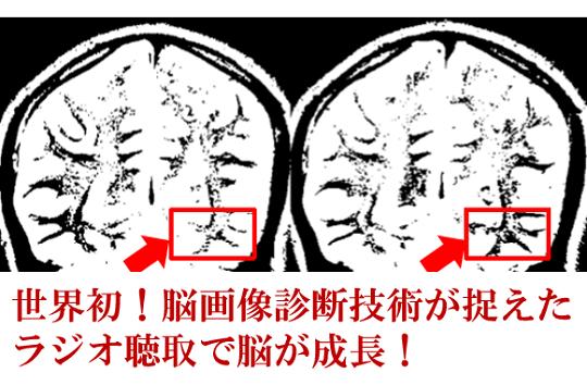 第217号 世界初!脳画像診断技術が捉えたラジオ聴取で脳が成長!